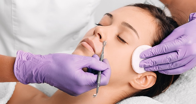 Facial Extractions Laval | Reimagine Clinic