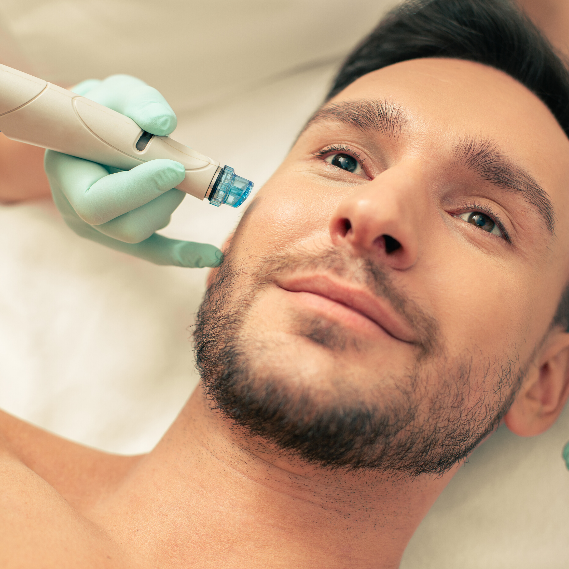 Best laval clinic for dermabrasion