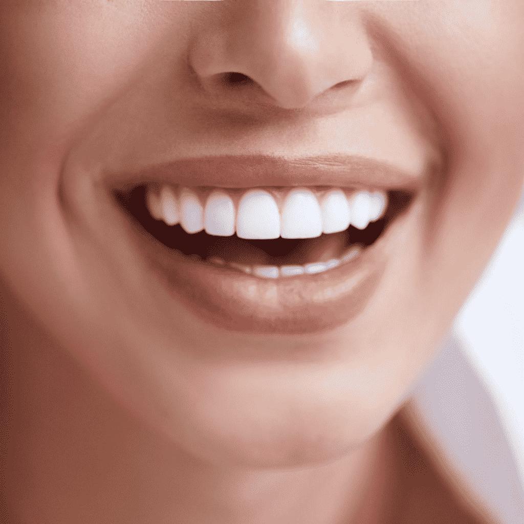 Teeth Whitening Treatment | Best Teeth Whitening Center in Laval, Quebec