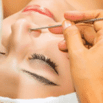 facial extraction laval montreal quebec