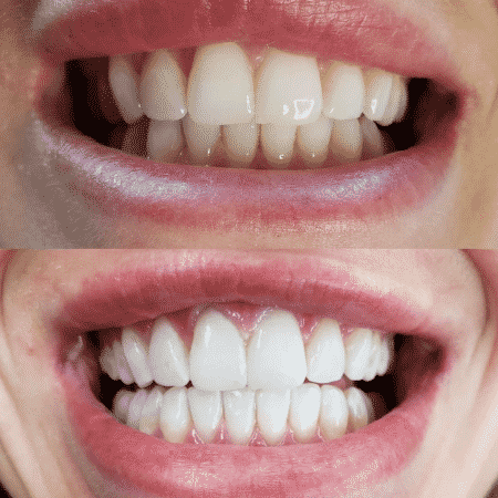 Teeth Whitening Treatment | Best Teeth Whitening Center in Laval, Quebec