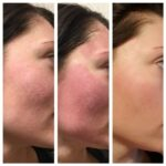 Microneedling Facial Treatment in Laval